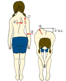 側弯症の検査