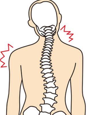 側弯症の図